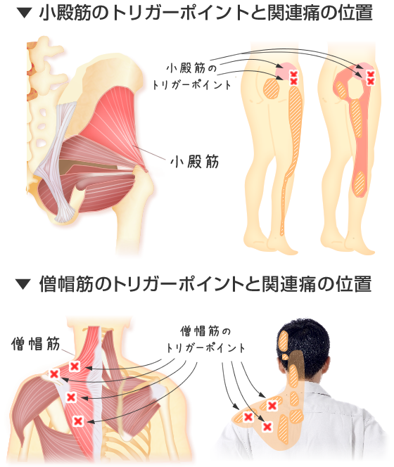小殿筋,僧帽筋のトリガーポイントと関連痛の位置